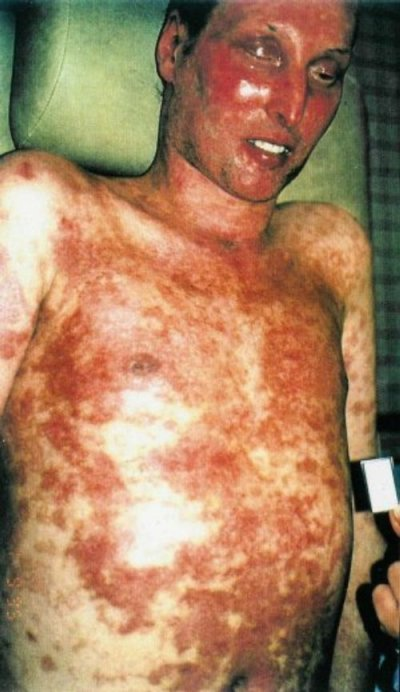 Photos:STEVENS JOHNSON SYNDROME- photos:toxic epidermal necrolysis